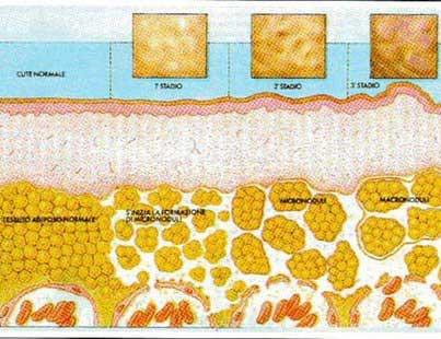rappresentazione degli stadi della cellulite