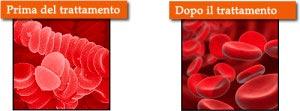 Trattamento per il disimpilamento dei globuli rossi